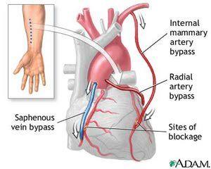 ¿Qué es un bypass coronario?: Para realizar el <i>bypass</i> se hace un empalme con un vaso arterial o venoso