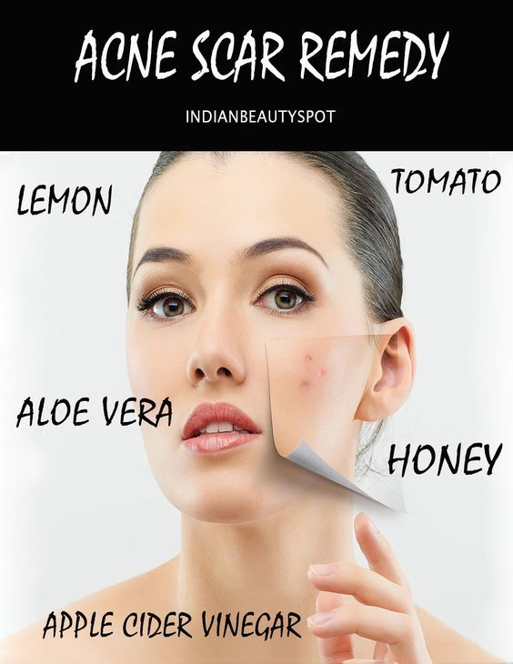 2091 best acne scar how to get rid of images on pinterest acne 2091 best acne scar how to get rid of images on pinterest acne scars acne studios and acne treatment ccuart Choice Image
