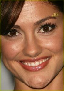 Boning Up on Chin Implants | The Huffington Post