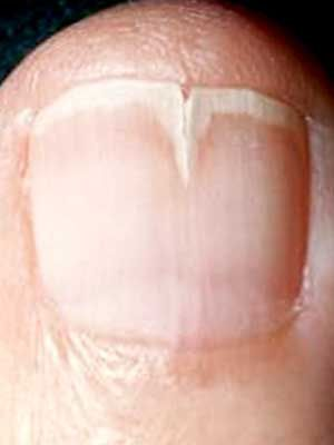 Brittle nails Onychorrhexis commonly called brittle nails is a brittleness with breakage of fingernails or toenails that could be caused by ...