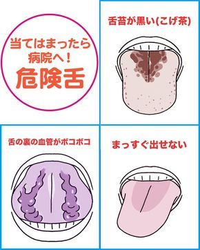 舌には身体のむくみ、乾燥などのサインから、大病の予兆がハッキリ出るという。特に舌の裏は自分の静脈を見られる唯一のところ。舌チェックで今日から病気を遠ざけよう!