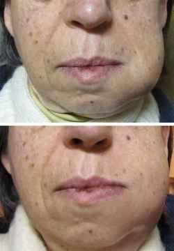 Dental problems facial swelling