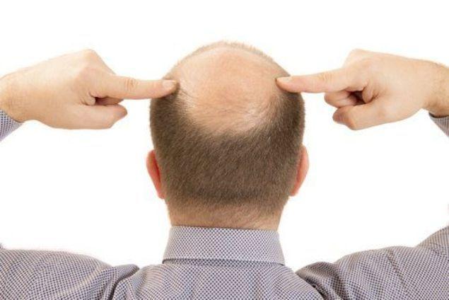 تعر ف على أسباب الصلع الوراثي وعلاجه Alopecia Treatment Alopecia Hair Loss Men