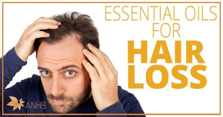 Treating Hair Loss for Men with Essential Oils #hairlosstreatmentformen