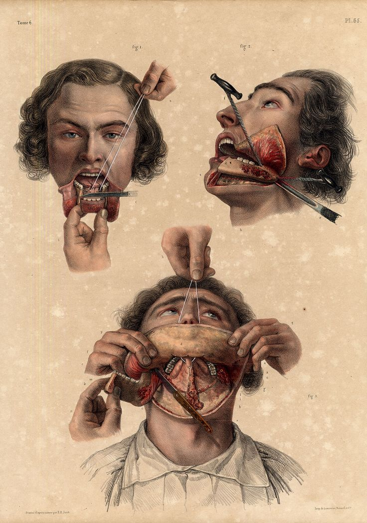 I chose this image along with many other medical ones because I was really caught by the use of the body in this story. The body horror in this story reflect the emotional horror felt be the narrator. Antique Medical Anatomy Print-RESECTION-LOWER JAW-Pl. 65-Bourgery-1831
