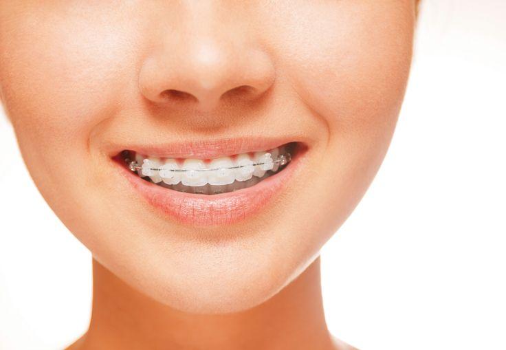 #ortodoncia para adultos con #brackets cerámicos transparentes, uno de los tratamientos más demandados por su excelente relación calidad-precio
