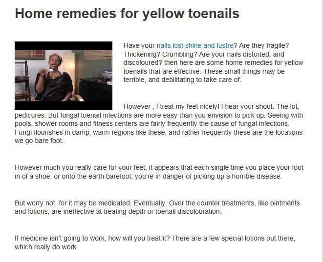 Have your nails lost shine and lustre? Are they fragile? Thickening? Crumbling? Are your nails distorted, and discoloured? then here are some home remedies for yellow toenails that are effective. These small things may be terrible, and debilitating to take care of.   http://healthtube.biz/home-remedies-yellow-toenails-quick-reliable-remedies/?preview_id=46973&preview_nonce=dba147fbbb&preview=true