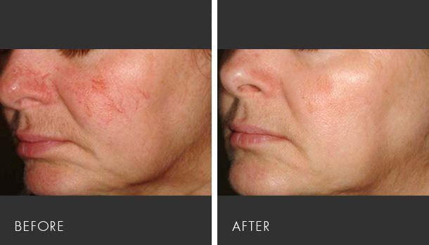 Understanding how to treat rosacea is of course, the number one question people ask once their symptoms are diagnosed. The answer…