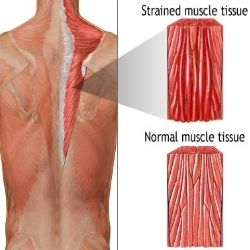 How To Prevent Muscle Strain