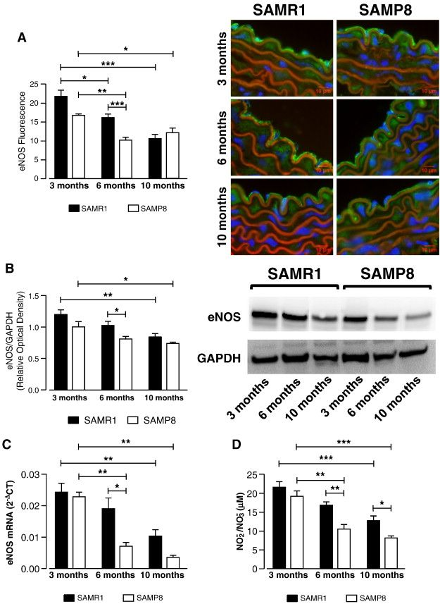 Aging-related endothelial dysfunction in the aorta from female senescence-accelerated mice is associated with decreased nitric oxide synthase expression — ScienceDirect
