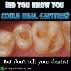Repinning just because it confirms the other post about healing cavaties. I have two so gna try it out!!! How to Heal Cavities Naturally . This is very intriguing.