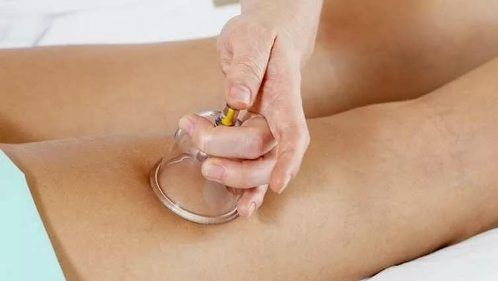 Баночный вакуумный массаж – как использовать для похудения. Какие массажные масла лучше применять, как делать процедуру по массажным линиям.