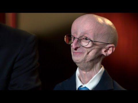 The Short, Remarkable Life of Sam Berns Turned Spotlight on Progeria