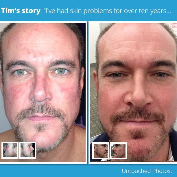 """""""There has been no return to the #redness nor the bumps. I couldn't be happier."""" Read Tim's #Rosacea Story: #ZENMED #redness #before & #after #results"""