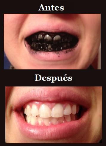La mejor manera de blanquear los dientes naturalmente.