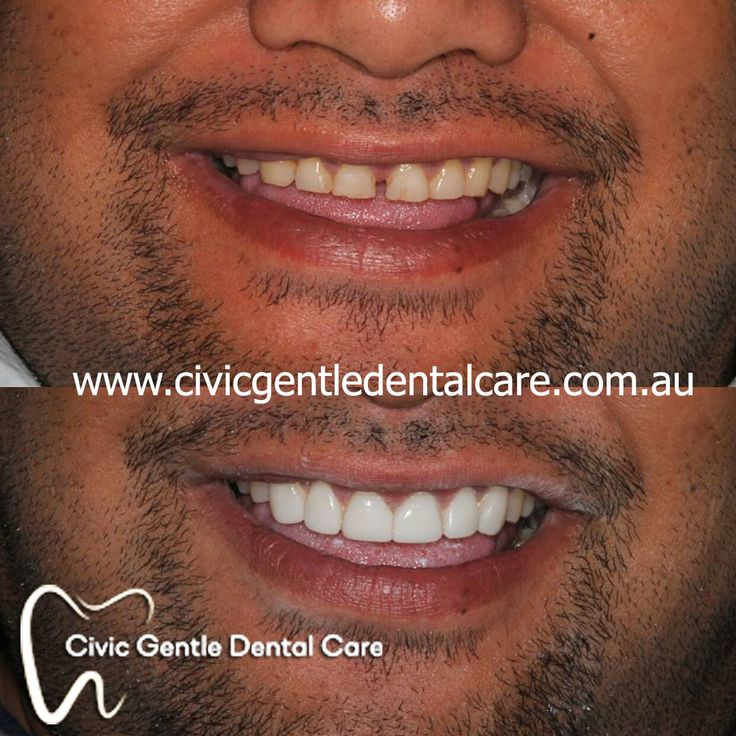 Civicgentledentalcare is now offering the experienced orthodontist, who helps to improve the appearance and alignment of crooked, protruding or crowdedteeth.
