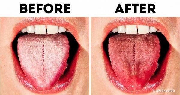 967cb3e2847aed75a23636c8015830fd - How To Get Rid Of A White Tongue Naturally