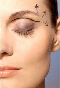 Blefaroplastia: La cirugía que corrige bolsas, ojeras y párpados caídos.