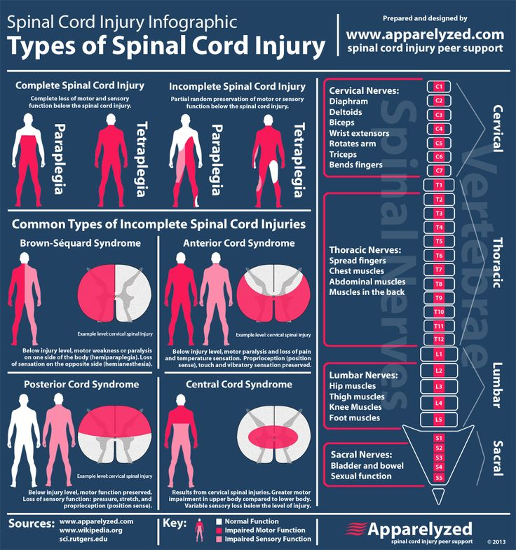 Incomplete & complete spinal cord injury infographic by Apparelyzed.