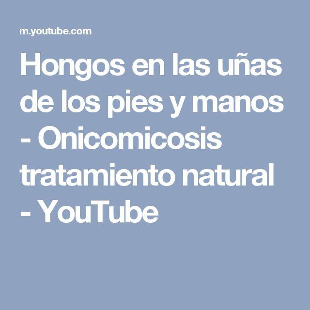 Hongos en las uñas de los pies y manos - Onicomicosis tratamiento natural - YouTube