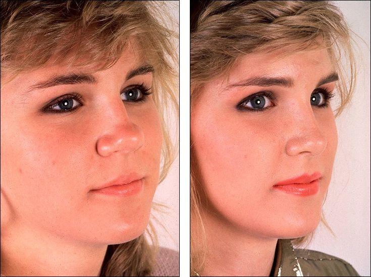 Dr steven denenbergs facial plastic surgery before and