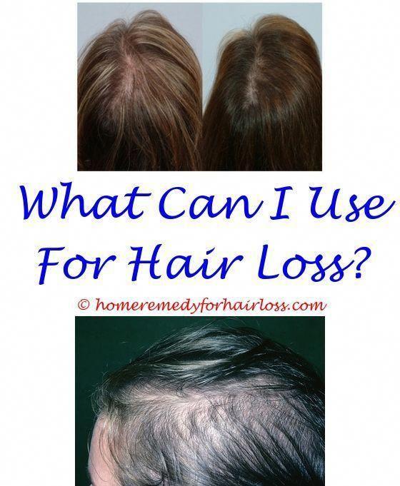 Pin on Hair Loss Stinks