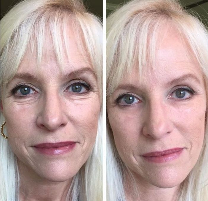 """Instantly Ageless.  Kinda like """" Liquid Botox """" without the needles or toxins. FREE samples. Just ask by text >> 623.680.7494."""