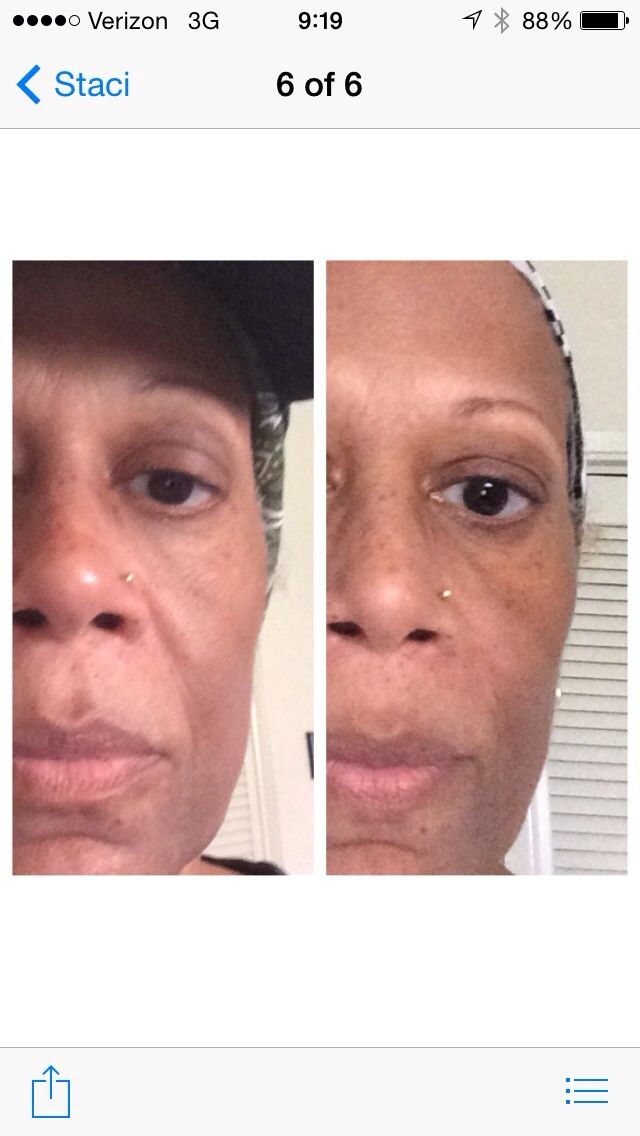 Nerium AD -The picture on the left is me before using Nerium AD. The picture on the right is me after using Nerium for 30 days!, you can experience similar results or better!!!