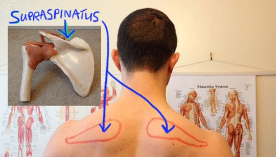 Supraspinatus: is this why my shoulder/ elbow/ wrist hurts?