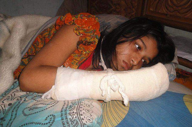 "Hawa Akhter, 21 This woman's husband chopped off her fingers because she began studying for a degree ""without his permission."" Some people are sick."