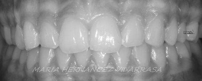 ¿Cómo cerrar diastemas con ortodoncia Invisalign?
