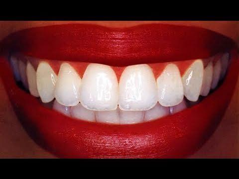 """""""Homemade"""" Teeth Whitening"""