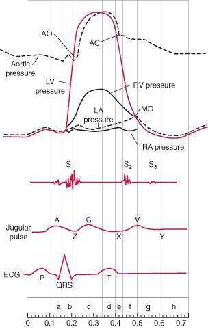 Cardiac Catheterization: Cardiovascular Tests and Procedures: Merck Manual Professional