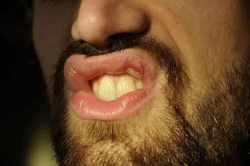 http://www.fever-blisters.net/how-to-get-rid-of-cold-sores-overnight.html Ways to get rid of cold sores right away. busted lip becomes cold sore