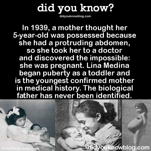 In 1939, a mother thought her 5-year-old was possessed because she had a protruding abdomen, so she took her to a doctor and discovered the impossible: she was pregnant. Lina Medina began puberty as a toddler and is the youngest confirmed mother in medical history. The biological father has never been identified.  Source
