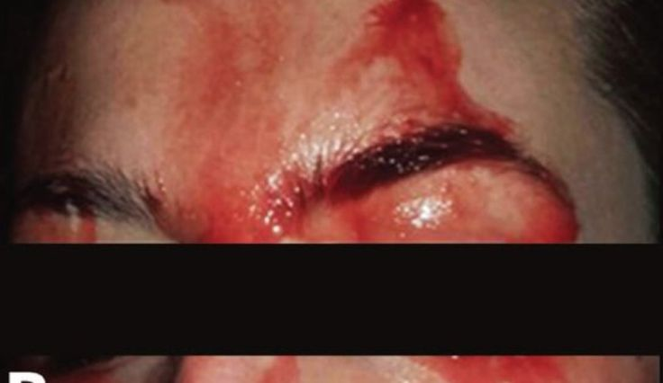 Physicians Report Rare Case of a Patient Sweating Blood - Seeker #757Live