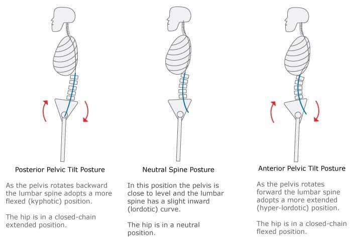 Kuvahaun tulos haulle posterior pelvic tilt