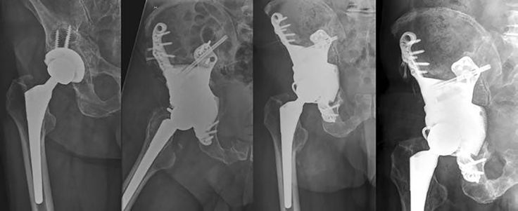 Materialise aMace Technology Leads to 3D Printed Hip Implants for Five New Patients