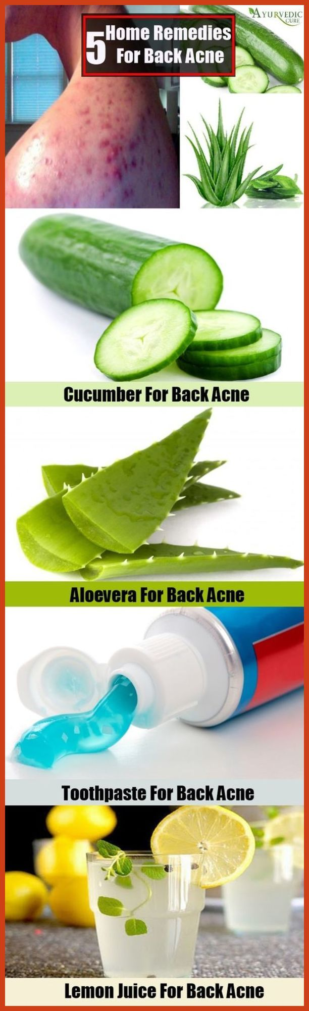 Home Remedies for Acne Overnight - Acne Cures That Are Found in the Kitchen ** More details can be found by clicking on the image. #HomemadeAcneRemedies