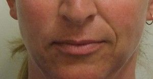 Get the lines filled for nasolabial folds with just one click now. #lip #fillers #face #lift #eyebrow #frown #lines