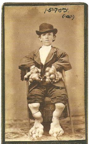 Photo: Circus Freak, Circus Sideshow, Human Oddities, Elephants Hands, Vintage Photography, Mother Museum, Weird, People, Little Men