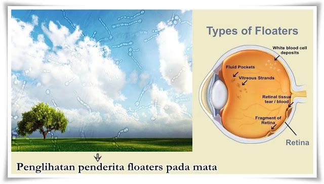 pengobatan eye floaters, cara menyembuhkan floaters pada mata, cara mengobati floaters pada mata, obat floaters pada mata