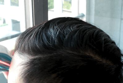 The Best Hair Loss Treatment for 2017 - https://healthcaremarts.com/collections/pain-relief/products/eletric-laser-comb-for-hair-loss-hair-growth