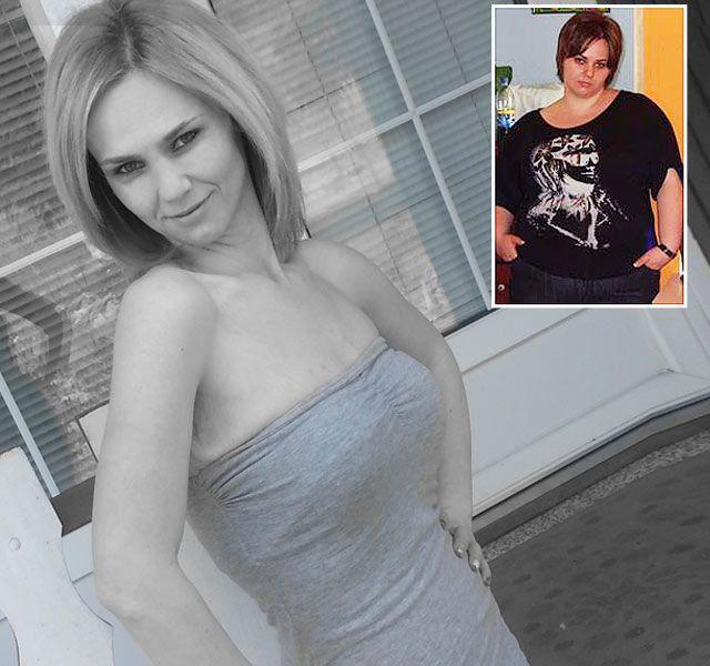 69 kilót fogyott gyűrű és tabletták nélkül! Elmondta, hogyan csinálta! - www.kiskegyed.hu