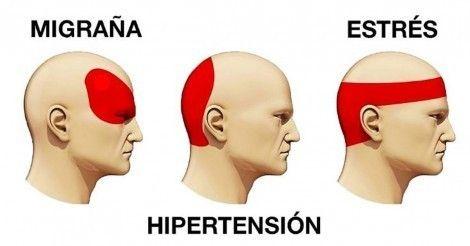 Cómo+diferenciar+el+dolor+de+cabeza+y+librarse+de+él+en+solo+5+minutos