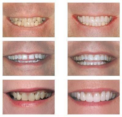 A Lente tem o objetivo de melhorar a estética do sorriso, basicamente é para harmonizar o seu sorriso, resolver leves imperfeições, fechamento de espaços, aumento do comprimento do dente, largura, arredondamento de ângulos, não são indicadas para todos os casos, por exemplo, para pessoas que tem os dentes tortos, o indicado é o tratamento com Aparelho Ortodôntico primeiramente, após esse tratamento, utilizar as lentes de contato dentais.