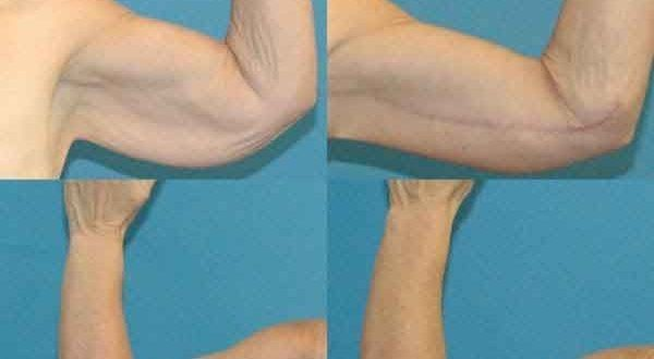 Arm lift with liposuction cost 2 – Liposuction before and after – #arm #cost…