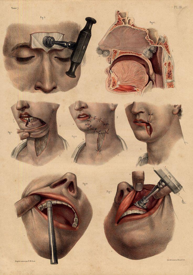 Drilling cranium and Tissue protecting
