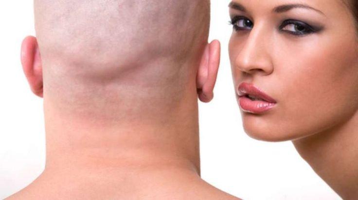 Apa Yang Dipikirkan Wanita Tentang Pria Botak?
