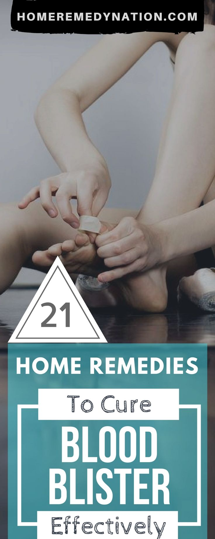 21 Wondrous Home Remedies To Get Rid Of Blood Blisters | Home Remedy Nation  #BloodBlister #HomeRemedy #Blisters #Remedies #NaturalRemedy #NaturalCure